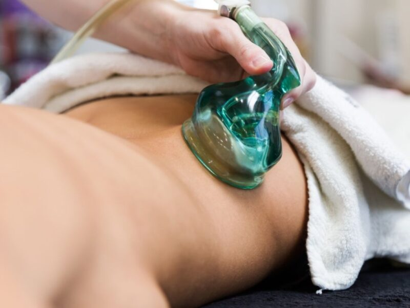 benefits of cupping therapy